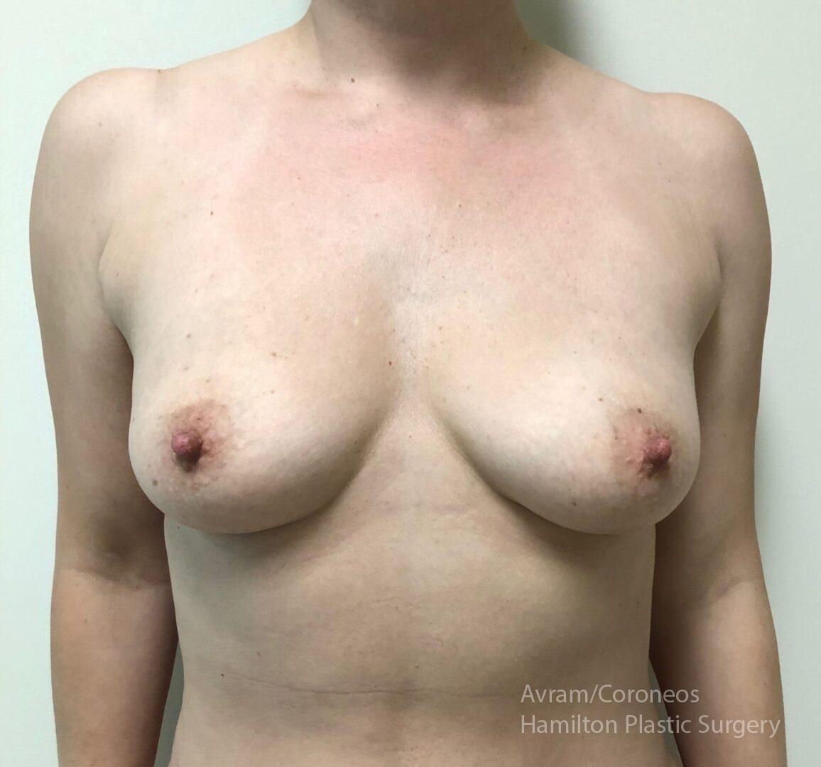 Dr. Ronen Avram Cosmetic & Reconstructive Breast Surgeon